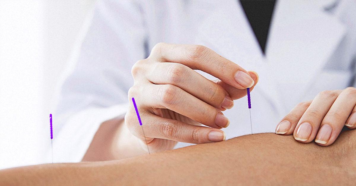 Resultado de imagem para acupuntura